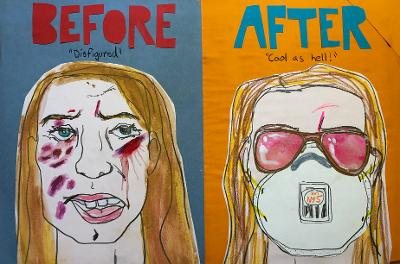 Sunde White illustrates her essay about hiding her grease burns with her n95 mask and sunglasses. Thanks Pandemic!