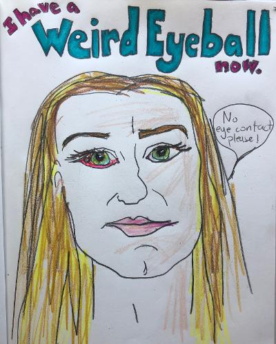 Sunde White, owner of Sunde White Industries writes and illustrates a story about her surfers eyeball called pinguecula